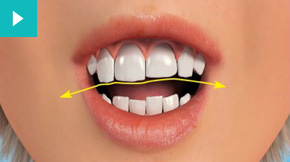 Gums Contouring & Teeth Reshaping